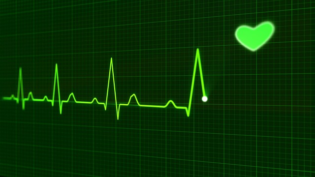 Holtere EKG