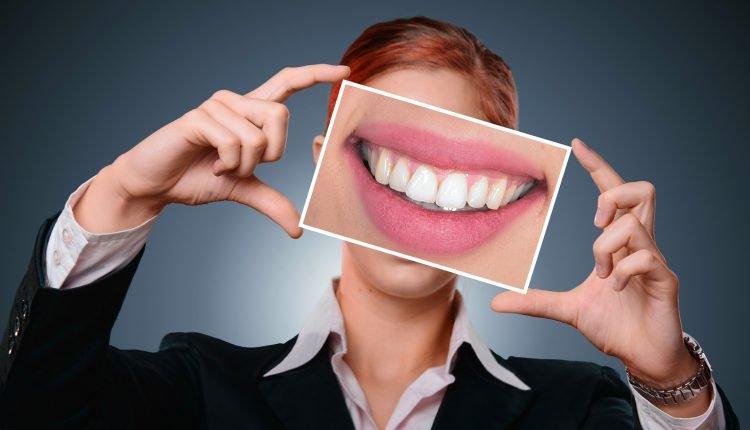 aparatele-dentare